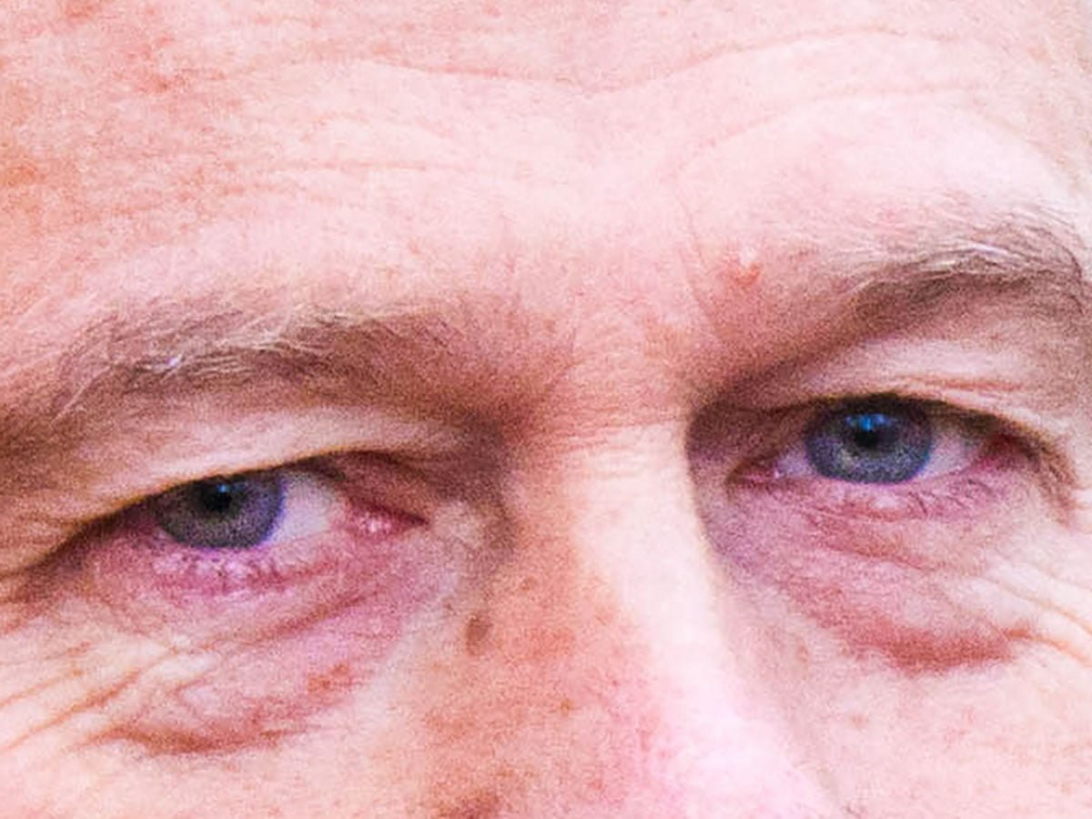 Chris Dick Eyes